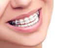 Как выбрать хорошего ортодонта?